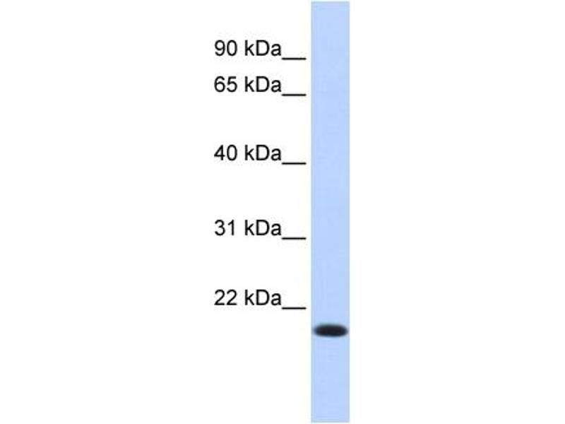 Western Blotting (WB) image for anti-Interferon Regulatory Factor 7 (IRF7) (N-Term) antibody (ABIN2780566)
