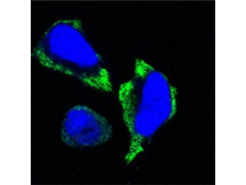 Immunocytochemistry (ICC) image for anti-P21-Activated Kinase 2 (PAK2) antibody (ABIN1842653)