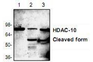 anti-Histone Deacetylase 10 (HDAC10) (N-Term) antibody