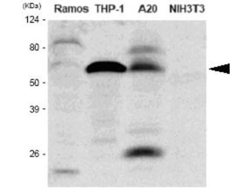 Western Blotting (WB) image for anti-Interferon Regulatory Factor 5 (IRF5) (AA 176-240) antibody (ABIN316092)