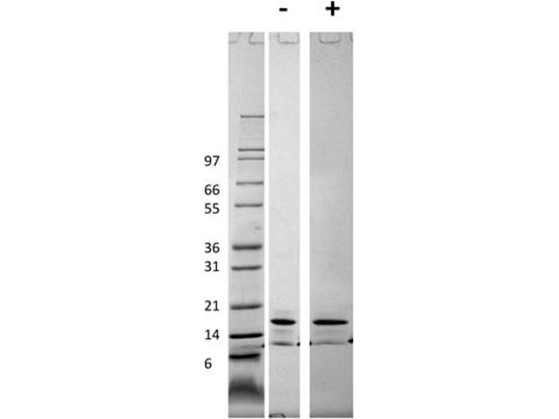 Image no. 1 for Chemokine (C-C Motif) Ligand 2 (CCL2) protein (ABIN6699612)