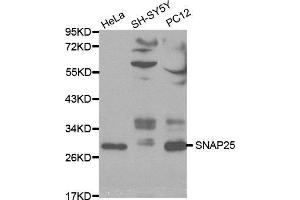 Image no. 2 for anti-Synaptosomal-Associated Protein, 25kDa (SNAP25) antibody (ABIN3021232)