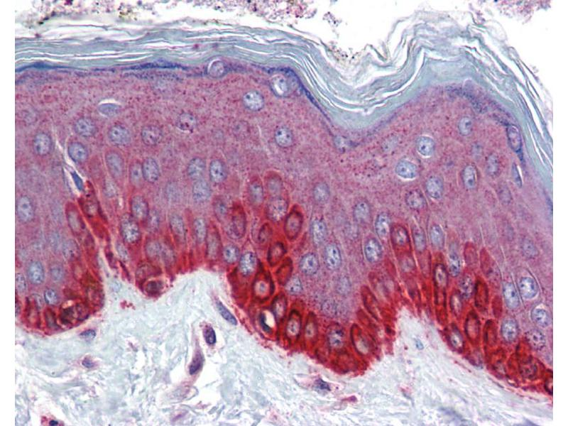 Immunohistochemistry (IHC) image for anti-Frizzled Family Receptor 4 (FZD4) (Middle Region) antibody (ABIN2776715)