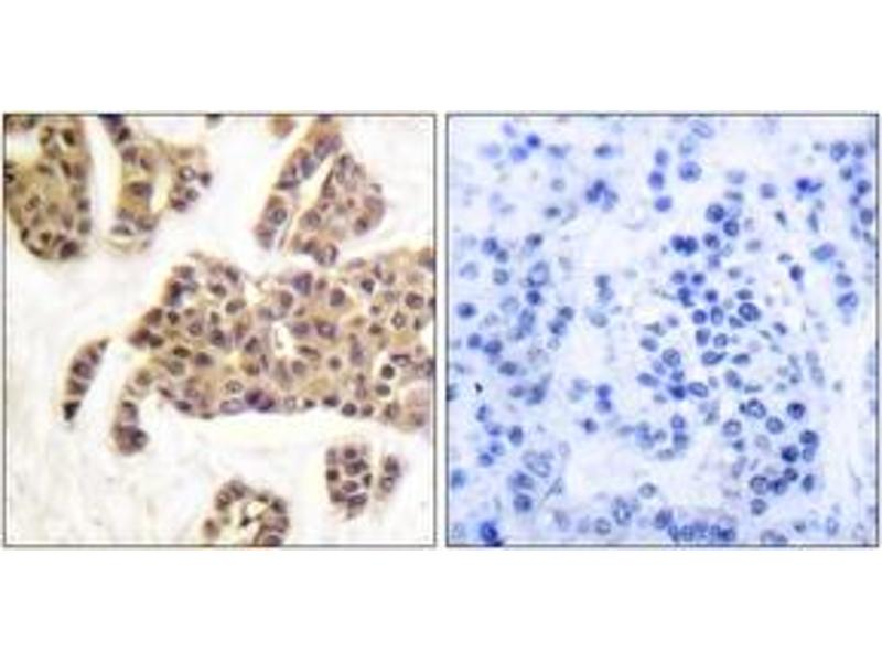 Immunohistochemistry (IHC) image for anti-BAD antibody (BCL2-Associated Agonist of Cell Death) (pSer91) (ABIN1531523)