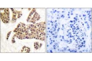 Immunohistochemistry (IHC) image for anti-BCL2-Associated Agonist of Cell Death (BAD) (AA 61-110), (pSer91) antibody (ABIN1531523)