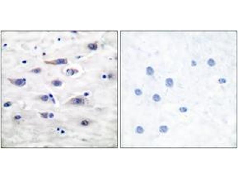 Immunohistochemistry (IHC) image for anti-Glutamate Receptor, Ionotropic, AMPA 1 (GRIA1) (AA 829-878) antibody (ABIN1532884)
