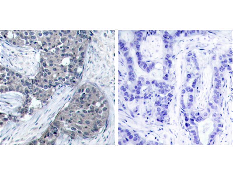 Image no. 1 for anti-Eukaryotic Translation Initiation Factor 4E (EIF4E) (pSer209) antibody (ABIN1576237)