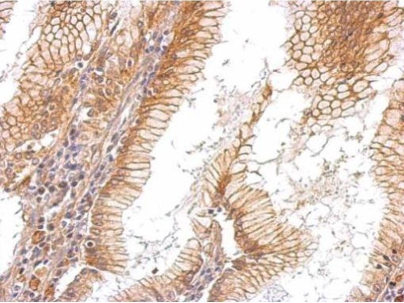 Immunohistochemistry (IHC) image for anti-Epidermal Growth Factor Receptor (EGFR) (C-Term) antibody (ABIN2854754)