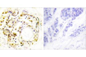 Image no. 1 for anti-Mitogen-Activated Protein Kinase 6 (MAPK6) (pSer189) antibody (ABIN1576357)