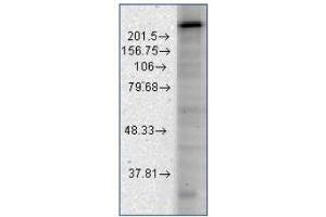 Western Blotting (WB) image for anti-Calcium Channel, Voltage-Dependent, T Type, alpha 1H Subunit (CACNA1H) antibody (ABIN447362)
