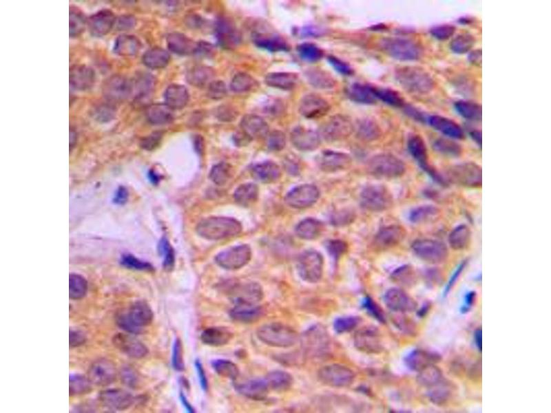 Immunohistochemistry (IHC) image for anti-YAP1 antibody (Yes-Associated Protein 1) (Center) (ABIN2707258)