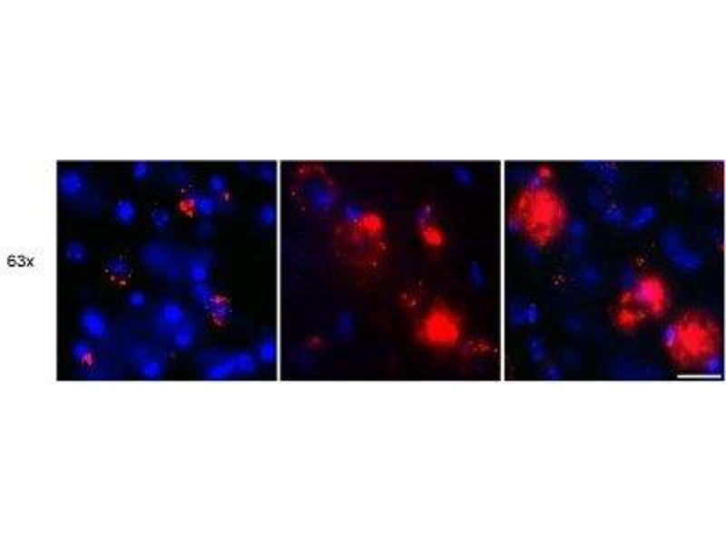 Immunofluorescence (IF) image for anti-Amyloid beta (Abeta) antibody (ABIN4284085)
