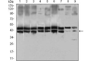Western Blotting (WB) image for anti-CD25 antibody (Interleukin 2 Receptor, alpha) (AA 34-139) (ABIN1845343)