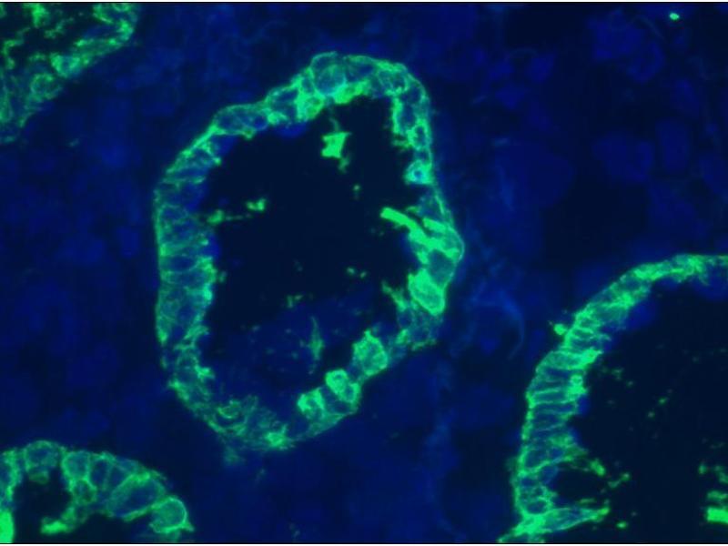 image for anti-Keratin 8 (KRT8) antibody (ABIN335327)