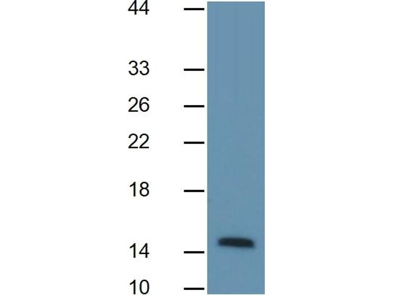 Fatty Acid Binding Protein 4, Adipocyte (FABP4) ELISA Kit (3)