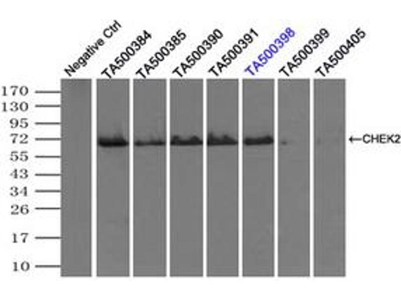 image for anti-Checkpoint Kinase 2 (CHEK2) antibody (ABIN1497496)