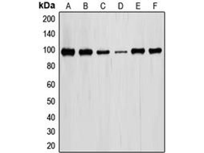 Western Blotting (WB) image for anti-Signal Transducer and Activator of Transcription 6, Interleukin-4 Induced (STAT6) (Center) antibody (ABIN2707113)