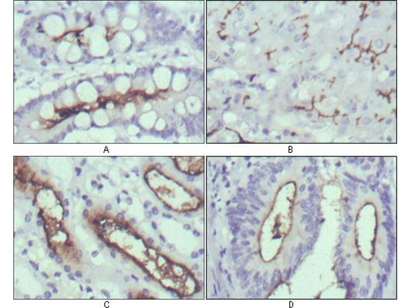 Immunohistochemistry (IHC) image for anti-Wingless-Type MMTV Integration Site Family, Member 10B (WNT10B) antibody (ABIN969459)