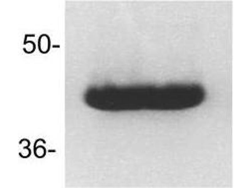 Western Blotting (WB) image for anti-FAS antibody (Fas (TNF Receptor Superfamily, Member 6)) (ABIN266061)