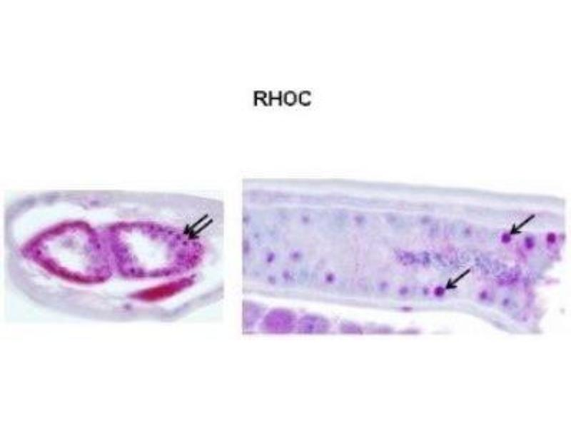 Immunohistochemistry (IHC) image for anti-Ras Homolog Gene Family, Member C (RHOC) (N-Term) antibody (ABIN4891935)
