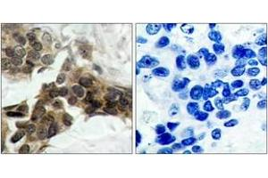 Immunohistochemistry (IHC) image for anti-Nuclear Factor of kappa Light Polypeptide Gene Enhancer in B-Cells Inhibitor, alpha (NFKBIA) (AA 15-64), (pSer32) antibody (ABIN1531880)
