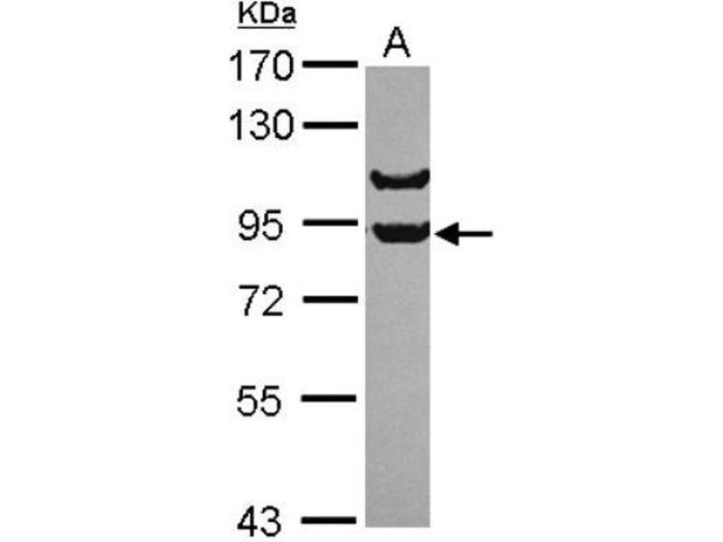 Western Blotting (WB) image for anti-Adaptor Protein, phosphotyrosine Interaction, PH Domain and Leucine Zipper Containing 1 (APPL1) (C-Term) antibody (ABIN4281278)