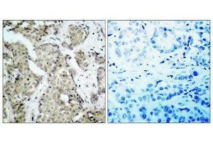 Image no. 1 for anti-Mitogen-Activated Protein Kinase Kinase 3 (MAP2K3) (pSer189), (Ser207) antibody (ABIN1847502)