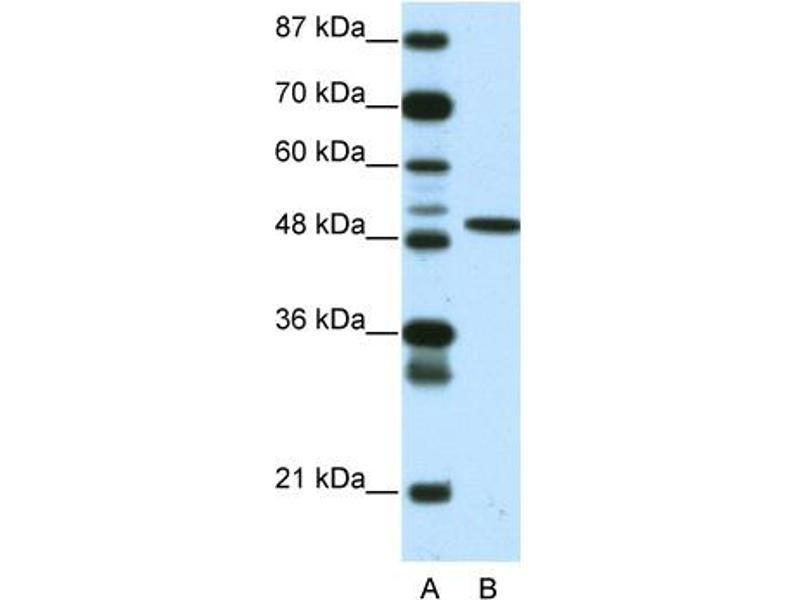 Western Blotting (WB) image for anti-Ets Variant 5 (ETV5) (N-Term) antibody (ABIN2779534)