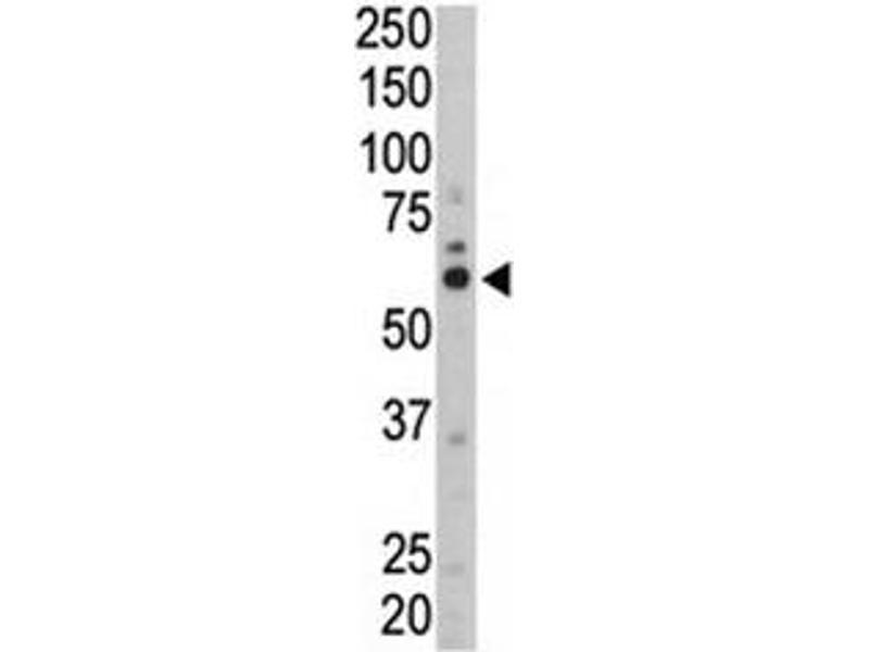 Western Blotting (WB) image for anti-FYN Oncogene Related To SRC, FGR, YES (FYN) (AA 13-43) antibody (ABIN3031009)