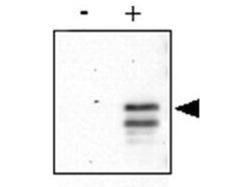 Image no. 3 for anti-cAMP Responsive Element Binding Protein 1 (CREB1) (AA 122-147), (pSer133) antibody (ABIN97863)