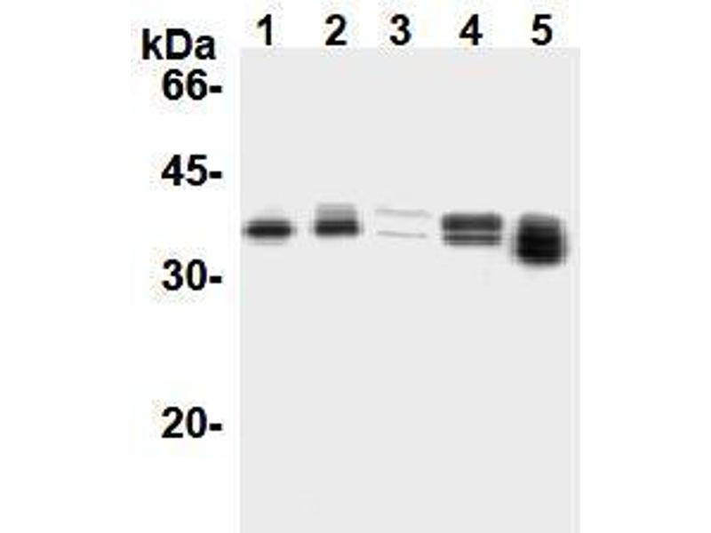 Western Blotting (WB) image for anti-Cyclin D1 antibody (CCND1) (ABIN1106871)