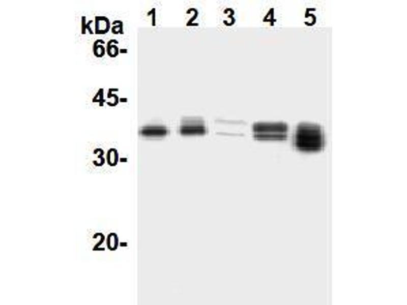 Western Blotting (WB) image for anti-Cyclin D1 (CCND1) antibody (ABIN1106871)