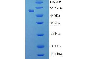 Image no. 1 for Retinoblastoma Binding Protein 7 (RBBP7) (AA 1-425), (full length) protein (His-SUMO Tag) (ABIN5711301)