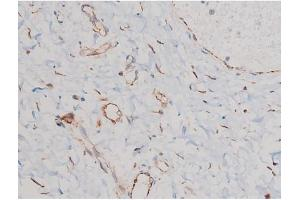 Image no. 1 for anti-Cell Division Cycle 25 Homolog A (S. Pombe) (CDC25A) (pSer124) antibody (ABIN6256120)