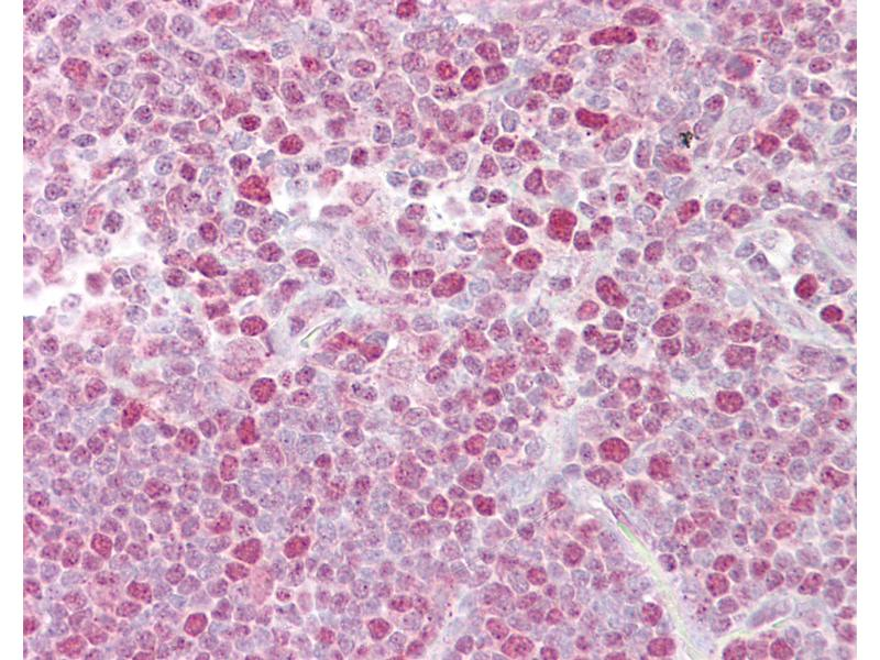 Immunohistochemistry (IHC) image for anti-Nuclear Factor of Activated T-Cells, Cytoplasmic, Calcineurin-Dependent 2 (NFAT1) (C-Term) antibody (ABIN959000)