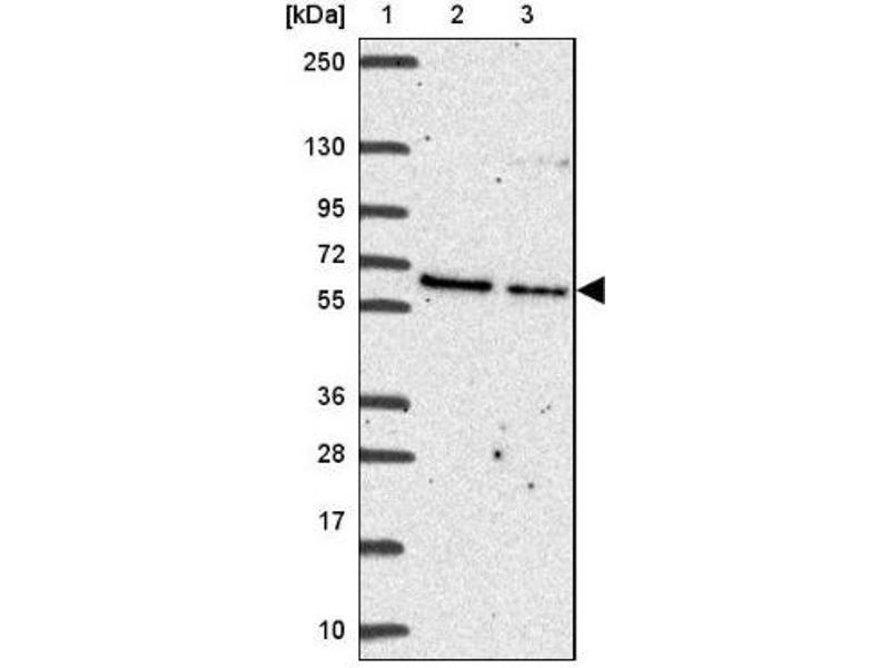 Western Blotting (WB) image for anti-Advillin (AVIL) antibody (ABIN4278537)