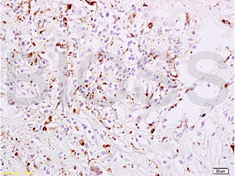 Immunohistochemistry (IHC) image for anti-Signal Transducer and Activator of Transcription 6, Interleukin-4 Induced (STAT6) (AA 630-645), (pTyr641) antibody (ABIN734483)