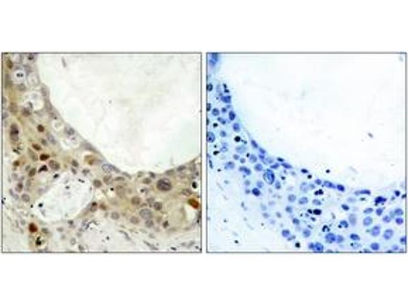 Immunohistochemistry (IHC) image for anti-B-Cell CLL/lymphoma 2 (BCL2) (AA 41-90), (pSer70) antibody (ABIN1531786)