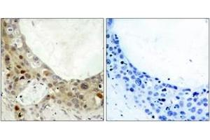 Immunohistochemistry (IHC) image for anti-BCL2 antibody (B-Cell CLL/lymphoma 2) (pSer70) (ABIN1531786)