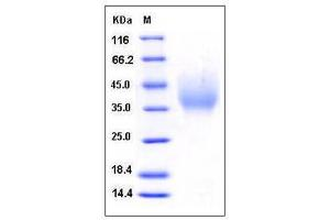 Image no. 1 for Deleted in Malignant Brain Tumors 1 (DMBT1) (AA 1-220), (N-Term) (Active) protein (His tag) (ABIN2004508)
