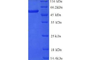 Image no. 1 for delta Like Protein 3 (DLL3) (AA 27-492), (Extracellular) protein (His tag) (ABIN5714494)