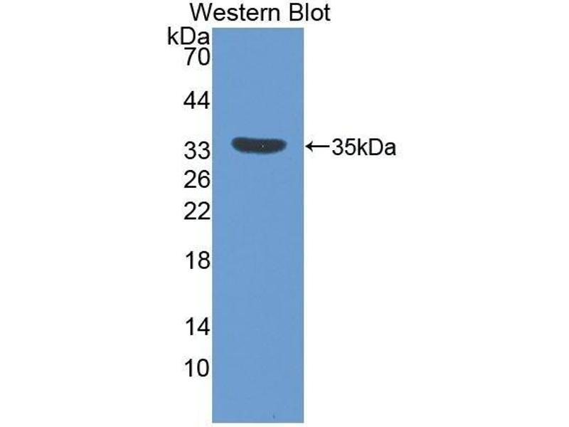 Western Blotting (WB) image for anti-Insulin-Like Growth Factor Binding Protein 5 (IGFBP5) (AA 25-271) antibody (ABIN1078204)
