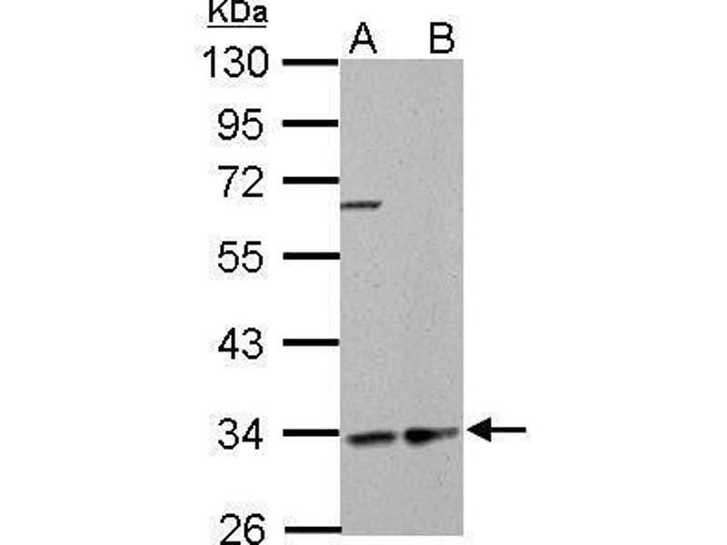 Western Blotting (WB) image for anti-Hydroxyacyl-CoA Dehydrogenase (HADH) (Center) antibody (ABIN2856051)