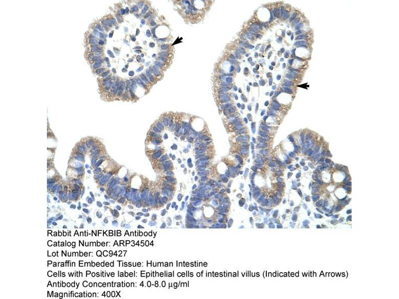 Immunohistochemistry (IHC) image for anti-Nuclear Factor of kappa Light Polypeptide Gene Enhancer in B-Cells Inhibitor, beta (NFKBIB) (C-Term) antibody (ABIN2775837)