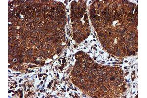 Image no. 12 for anti-Chromosome 1 Open Reading Frame 50 (C1ORF50) antibody (ABIN1497033)