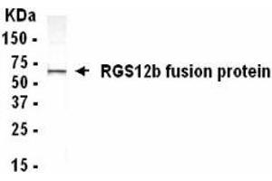 Image no. 1 for anti-Regulator of G-Protein Signalling 12 (RGS12) (AA 1372-1447) antibody (ABIN2467877)