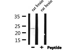 Image no. 2 for anti-ADP-Ribosylation Factor 4 (ARF4) antibody (ABIN6258696)