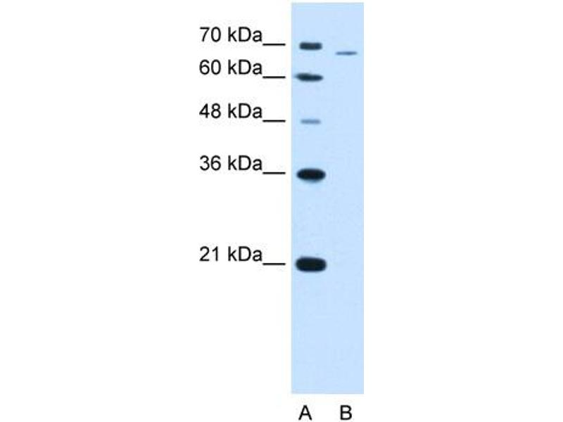 Western Blotting (WB) image for anti-phosphofructokinase, Liver (PFKL) (Middle Region) antibody (ABIN2782359)