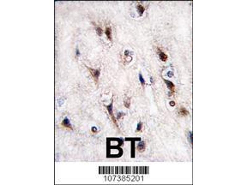 Immunohistochemistry (IHC) image for anti-Nuclear Receptor Subfamily 4, Group A, Member 2 (NR4A2) (AA 13-42), (N-Term) antibody (ABIN390383)