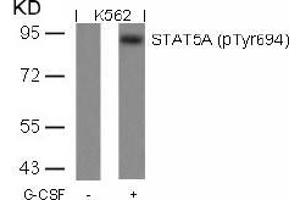 anti-Signal Transducer and Activator of Transcription 5A (STAT5A) (pTyr694) antibody (2)